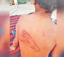 मदरसे में मौलाना ने 6 साल की बच्ची को बेरहमी से पीटा