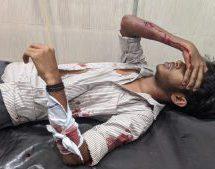 केरल में एसएफआई गुंडों ने एबीवीपी छात्र पर किया हमला