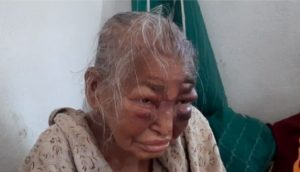 W. Bengal – Mother of BJP worker, attacked by TMC goons, passes away